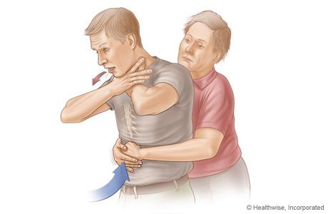 Imagen B: Vista lateral de la maniobra de Heimlich en un adulto o un niño, que muestra la posición de las manos y la dirección de la compresión